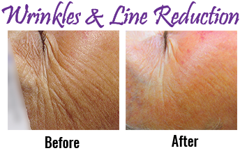 Wrinkle Reduction Cape Cod